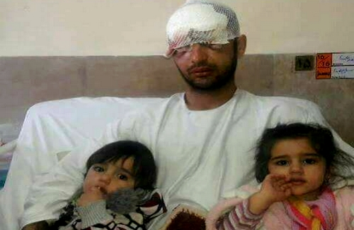 Another Kurdish Kolbar border porter lost both eyes due to Iranian security forces blind shootings